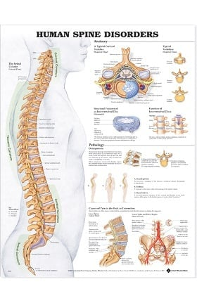 Anatomical Chart Company The Human Spine - Disorders Anatomical Chart