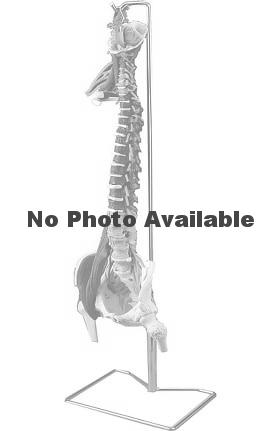 Anatomical Chart Company Full Color-Coded Muscle Spine with Disorders Anatomical Model