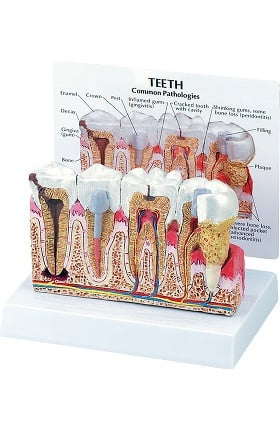 Anatomical Chart Company Diseased Teeth and Gum Model