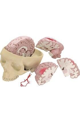 Anatomical Chart Company Diseased Brain Model