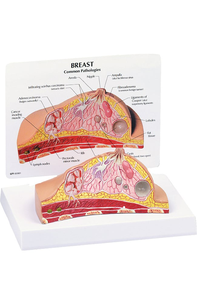 Anatomical Chart Company Breast Cross Section Model | allheart.com