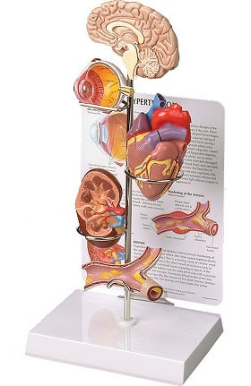 Anatomical Chart Company Hypertension Model