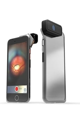 D-EYE Retinal Screening System For iPhone